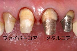 鷲尾歯科医院 - ファイバーコア...